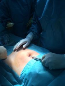 Підготовка до постановки троакара при операції TEP при паховій грижі